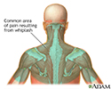 Location of whiplash pain