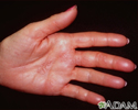 Herpes zoster (shingles) on the hand