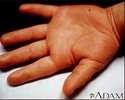 Kawasaki's disease - edema of the hand