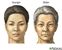 Changes in face with age