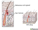 Hair follicle anatomy