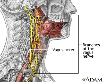 Role of the vagus nerve in epilepsy
