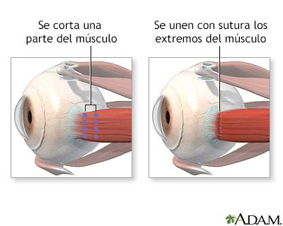 Reparación de los músculos oculares