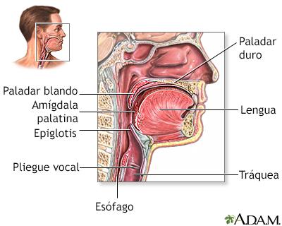 Hipertrofia de adenoides