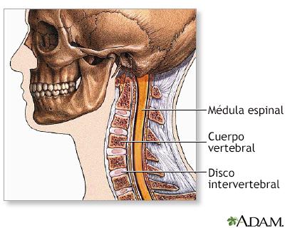 Alta tras cirugía de la columna vertebral