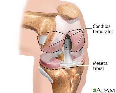 Serie sobre artroplastia de rodilla