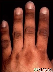 El lápiz contra las manchas de pigmento sobre la persona