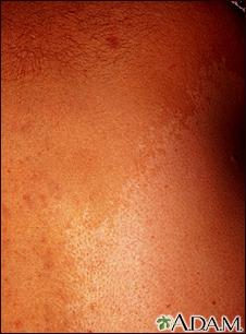 De la crema de las manchas de pigmento sobre la persona orifleym