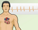 Cardiac arrhythmia symptoms