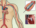 Cardiac catheterization - angioplasty and other procedures